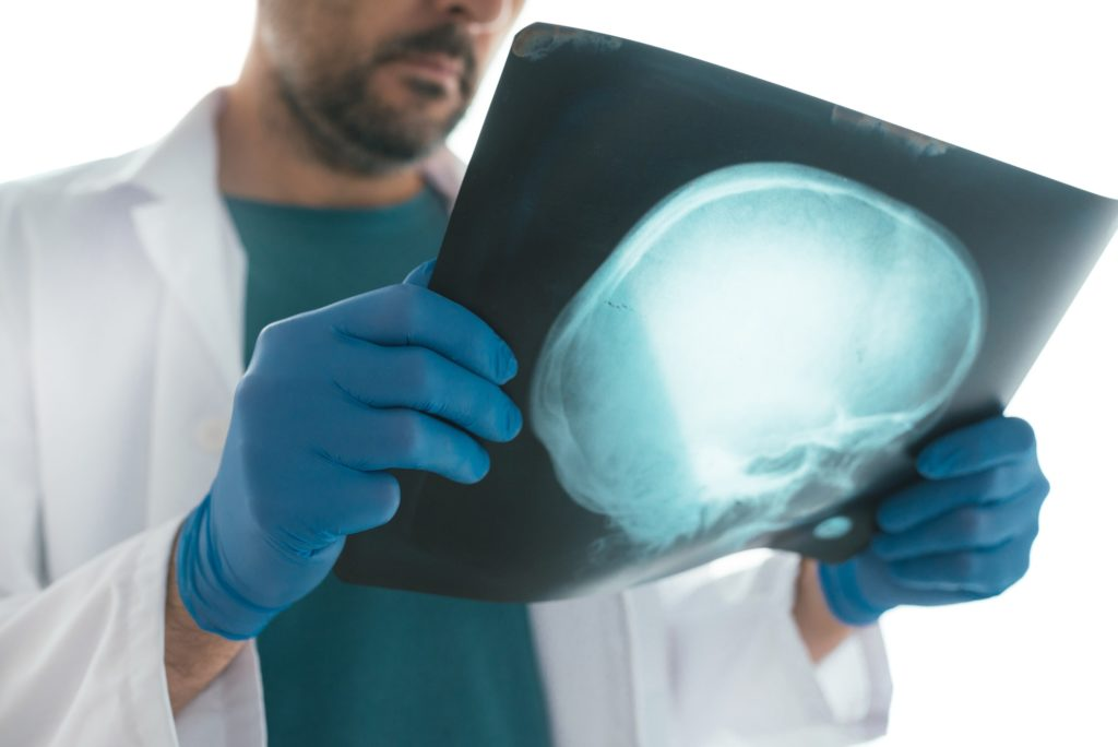 Doctor examining x-ray of the skull